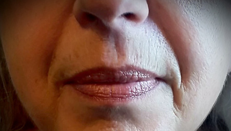 Dermal Filler Treatment for nasolabial folds, upper vermillion border of lip & marionette lines
