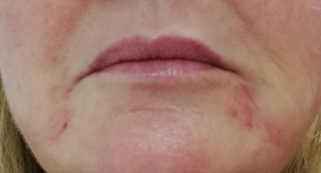 Dermal Filler Treatment for bilateral Marionette lines