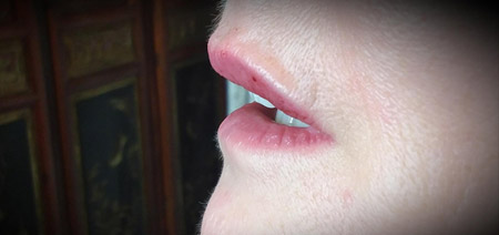 Dermal Filler Treatment for perioral lines