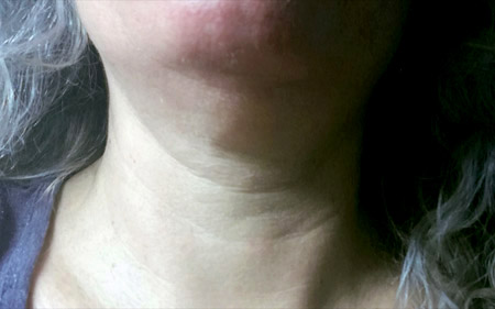 Profhilo treatment for neck
